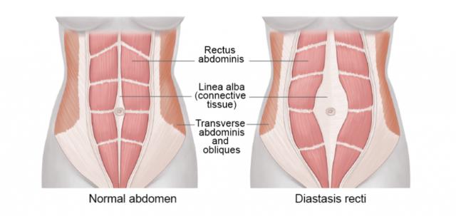 产后腹直肌分离修复