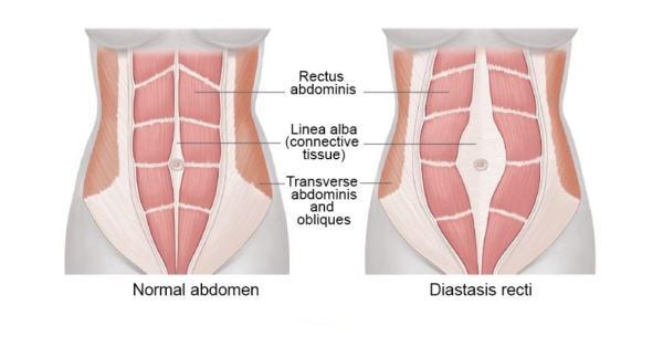 产后腹直肌分离